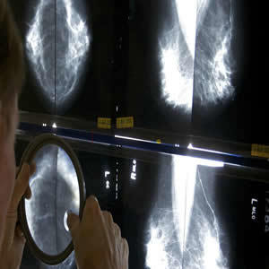 USPSTF New Mammography Guidelines Could Cost Thousands of Lives