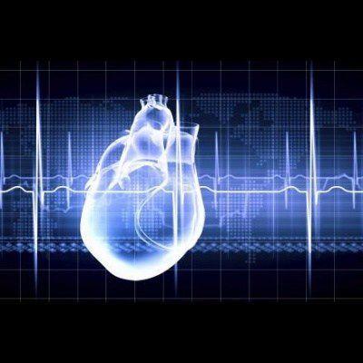 Near-Death Brain Signalling Speeds Cardiac Demise
