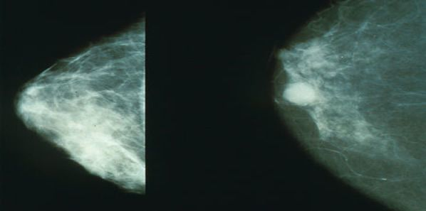 Breast Density Better Predicts Breast Cancer Risk