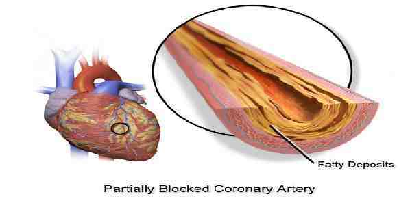 Nonobstructive CAD Linked to Higher Risk of Heart Attack, Death