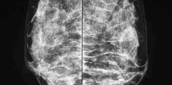 Combining Tomosynthesis and Mammography is Cost-Effective