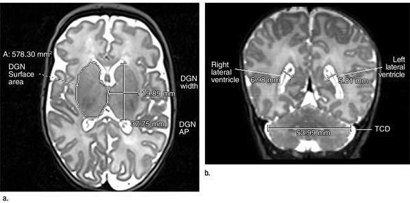 MRI Detects Late Preterm Infant Brain Abnormalities