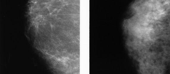 ECR 2014: Volpara Solutions Launches Two Quantitative Breast Imaging Tools