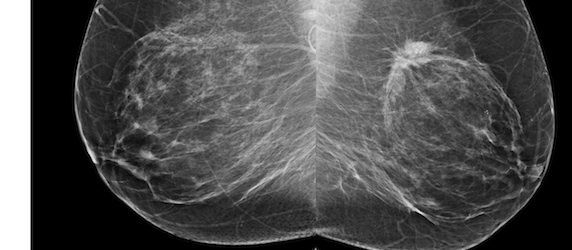 RSNA 2013: Breast Cancer Prognosis Potentially Affected by Screening Intervals
