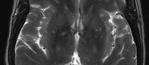RSNA 2013: Brain Differences in Preterm Infants Highlighted via MR Spectroscopy