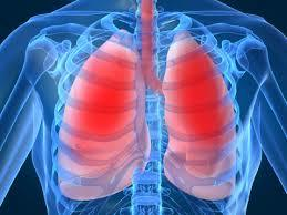 Newly Identified Biomarkers Help Predict Outcome in Deadly Lung Disease
