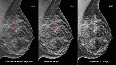 In Breast Cancer Detection, the Evidence Points to Tomosynthesis
