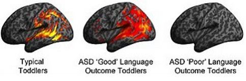 Brain Imaging Predicts Language Ability in ASD Toddlers