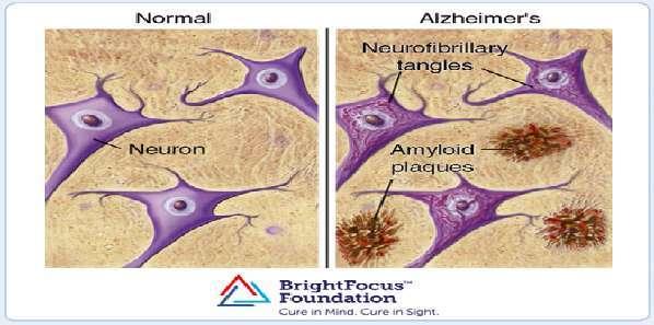 Noninvasive Ultrasound Technology Could Treat Alzheimer's Disease
