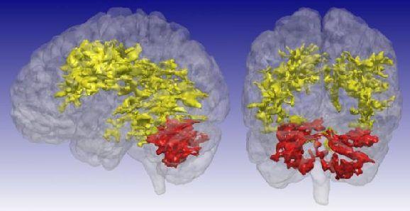 Bipolar Disorder: New MRI Method Provides New Insights