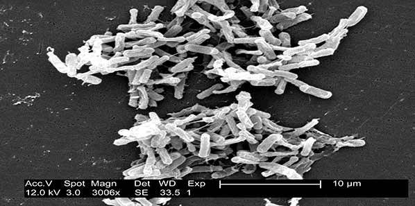 DNA Vaccine For C. Difficile