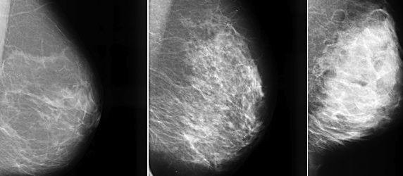 Breast Tissue Density Irrelevant for Molecular Imaging