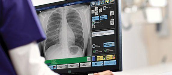 UK's Freeman Hospital Opts for CARESTREAM DRX-Evolution