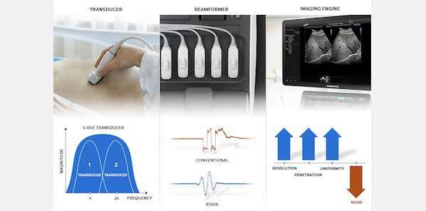 Samsung Introduces RS80A Premium Ultrasound System