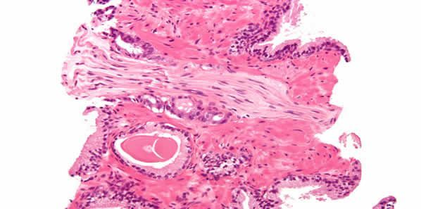 Aggressive Prostate Cancer Treatment Defies Guidelines