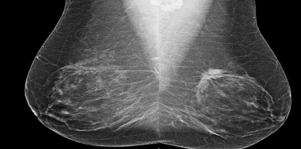 #RSNA14: Risk-Based Screening Misses Breast Cancers in Women in Their 40s