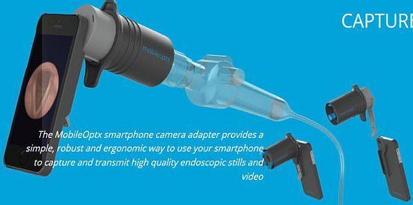 Smartphone Camera Tool Captures Endoscopic Images