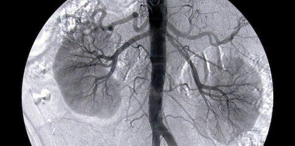Kidney Transplant Better Than Home Haemodialysis