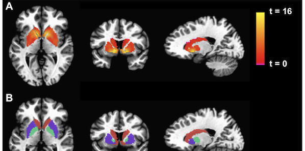 Brain May Hold Clues to Chronic Fatigue Syndrome