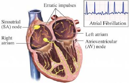 High Incidence of New-Onset AF in the ICU
