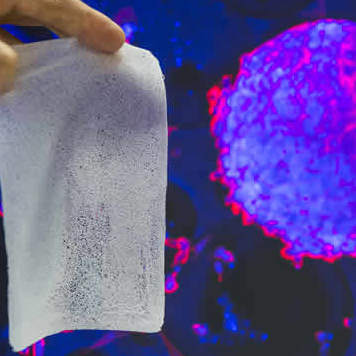 Foam that supports healing of chronic wounds