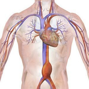 Drawing of an abdominal aortic aneurysm