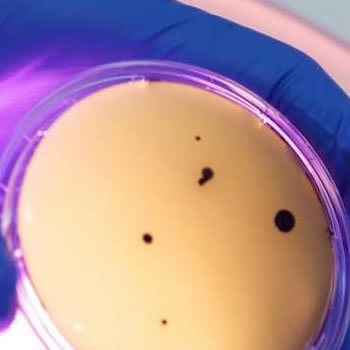 Microbial contamination