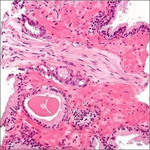 micrograph showing a prostate cancer