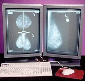 digital screening mammography