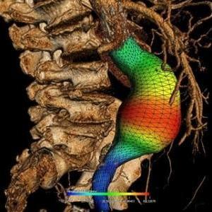 3D reconstruction of an abdominal aortic aneurysm