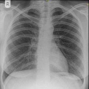 chest x-ray close-up