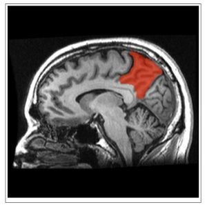 sagittal MRI slice with the precuneus shown in red