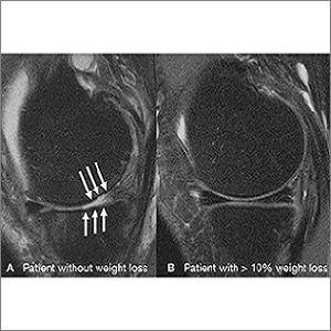 knee MRI scans