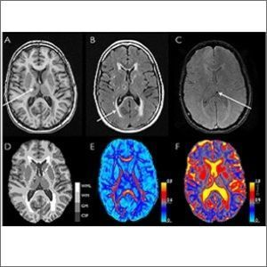 structural and microstructural brain changes on MRI
