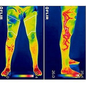 infrared thermography helps detect orthopaedic injury