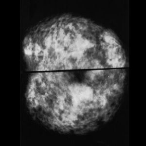 two mammograms of normal dense breasts