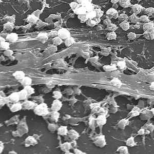 Fight Against Infections: Biofilms, MRSA, Funding