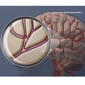 A blood clot in the brain. © American Heart Association