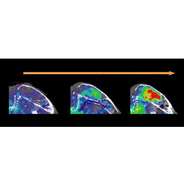 PET-scans of the brain of a mouse at 8, 12 and 18 months old with the antibody against so-called protofibrils © 2016 Uppsala Universitet