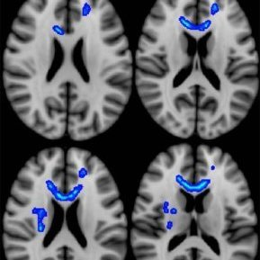 Blue indicates regions of the brain in which lower fractional anisotropy (FA - a measure of microstructural integrity) correlated with more severe neurobehavioral symptoms. Veterans with the most severe symptoms had lower FA in these regions. Source: Radi