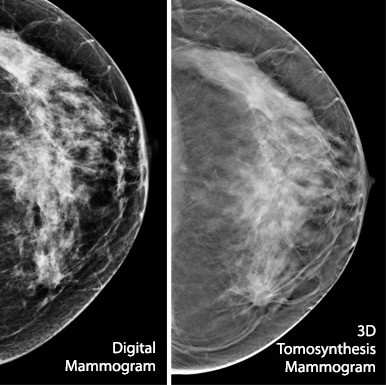 3D Of Dense Breasts To Help Slash Recall Rate, Cost For Cancer Screening