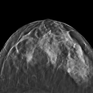 Tomosynthesis - Mammography of the Future?