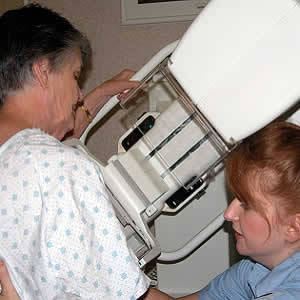 How Often Should You Have a Mammogram?