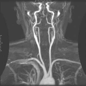CE-MARC 2: Fewer Invasive Angiograms