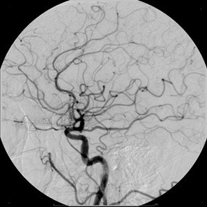 OCT Improves Post-PCI Outcome Compared to Angiography