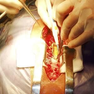 NIV After Cardiothoracic Surgery Reviewed