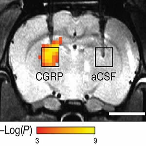 A Safer Way to Image Molecules in the Brain