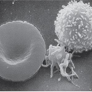 New Therapy for White Blood Cell Impairment in Septic Patients