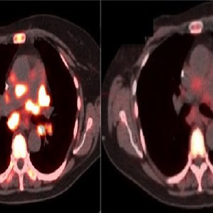 Left image: Pre-therapy; Right image: Three days after treatment