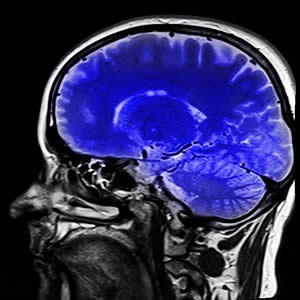 New Method for Automating 3D-MRI Quality Assessment
